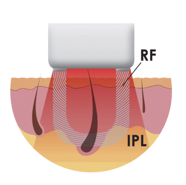 Illustration of the Intense Pulsed Light (IPL) and Radio Frequency (RF) energies used in the Iluminage Touch and Iluminage Precise Touch