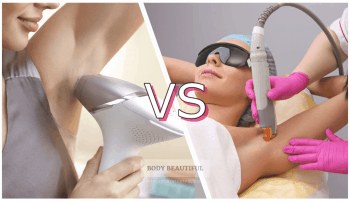 At-home laser & IPL hair removal vs Professional: which is best?