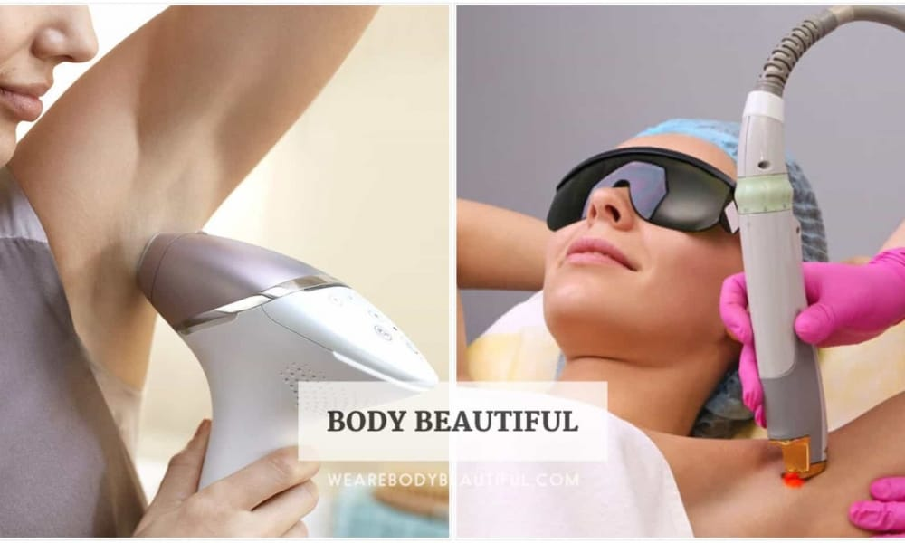 Laser hair removal at home vs professional treatments
