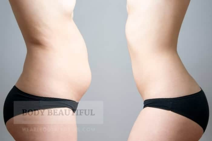 photo of a lady tummy with stubborn fat, and then presumably the same lady with a sculpted, slim tummy. It looks airbrushed to me, but it is stock photo so what can you expect.
