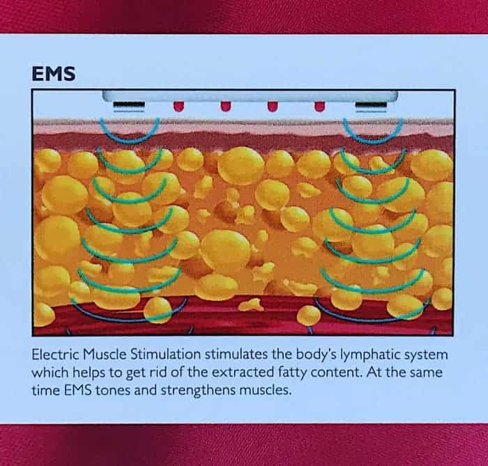 Diagram showing the EMS waves moving through the treatment area fat cells