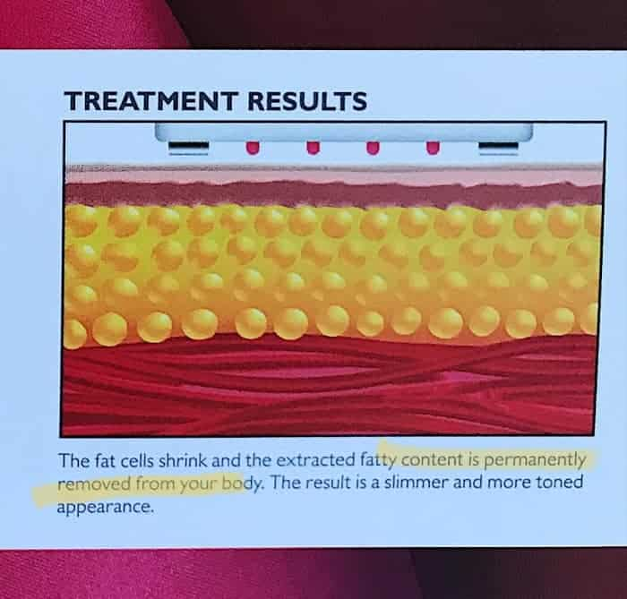 Diagram showing the shrunken fat cells and the layer of subdermal fat is thus thinner and reduced.