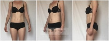 3 close up photos of my waist and tummy after 2 weeks and 5 full waist treatments with the Silkn Lipo