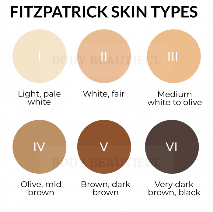 The Fitzpatrick skin tone chart with light to dark tones I through to VI.