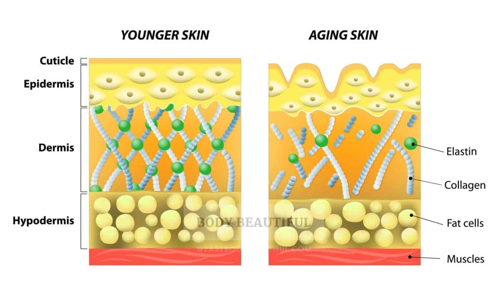 An illustrated diagram of younger skin and aging skin showing the decrease in collagen and broken elastin in older skin.