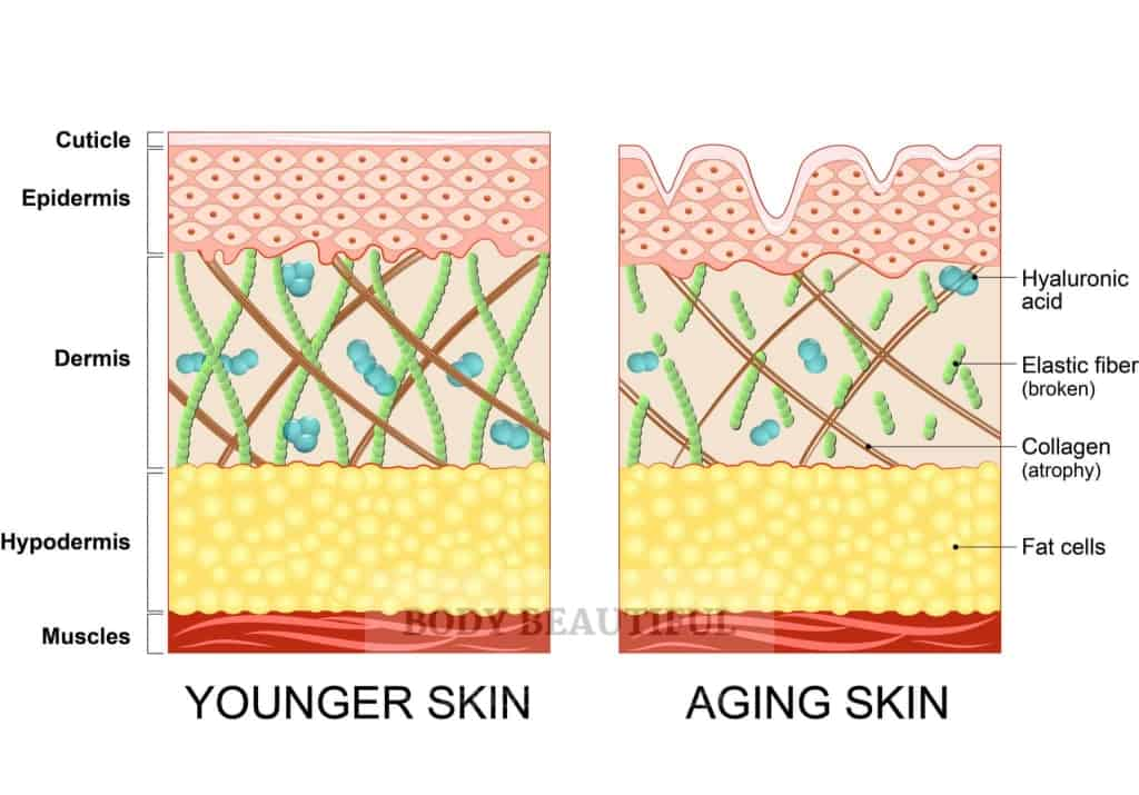 Cross section illustration of both younger skin and aging skin. Younger skin is smooth on the surface, organised in the epidermis, and packed with Hyaluronic Acid, collagen and elastin on the dermis. Aging skin is wrinkled at the surface, disordered in the epidermis, with less Hyaluronis Acid, broken elastin and weakened collagen fibres in the dermis.