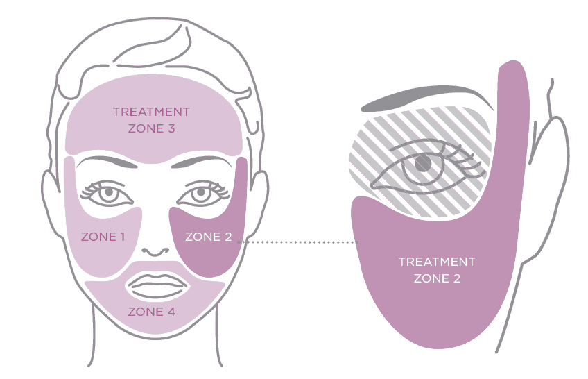 Graphic from the Tria laser user manual of the 4 facial zones to use the Tria laser on