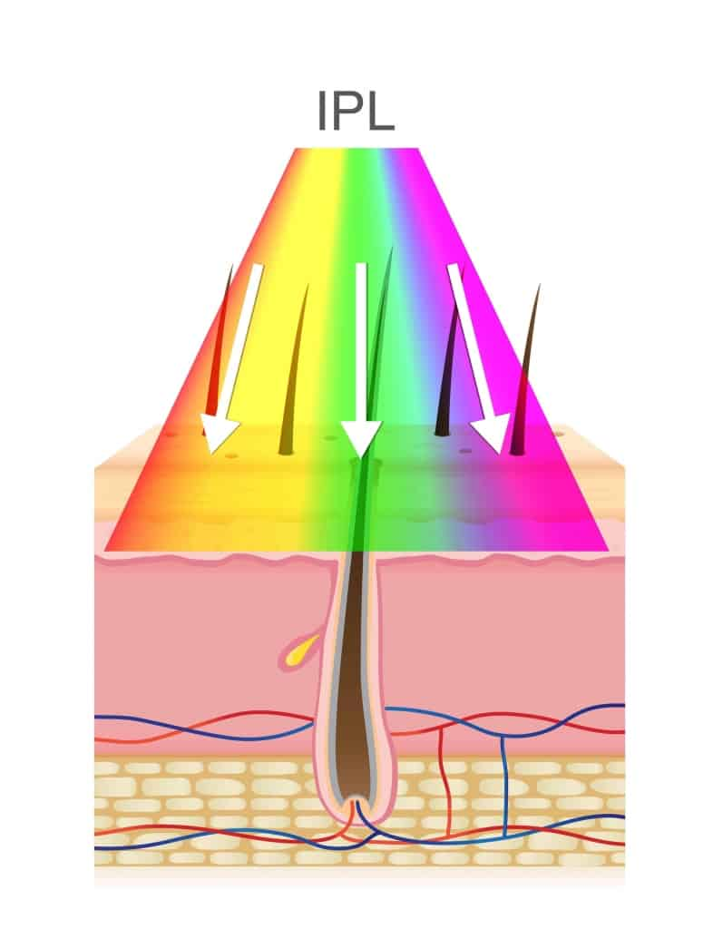 An illustration of a cross section of human skin with multi colour/wavelength Intense Pulsed Light flashing it and absorbing in a dark hair follicle for IPL hair removal.