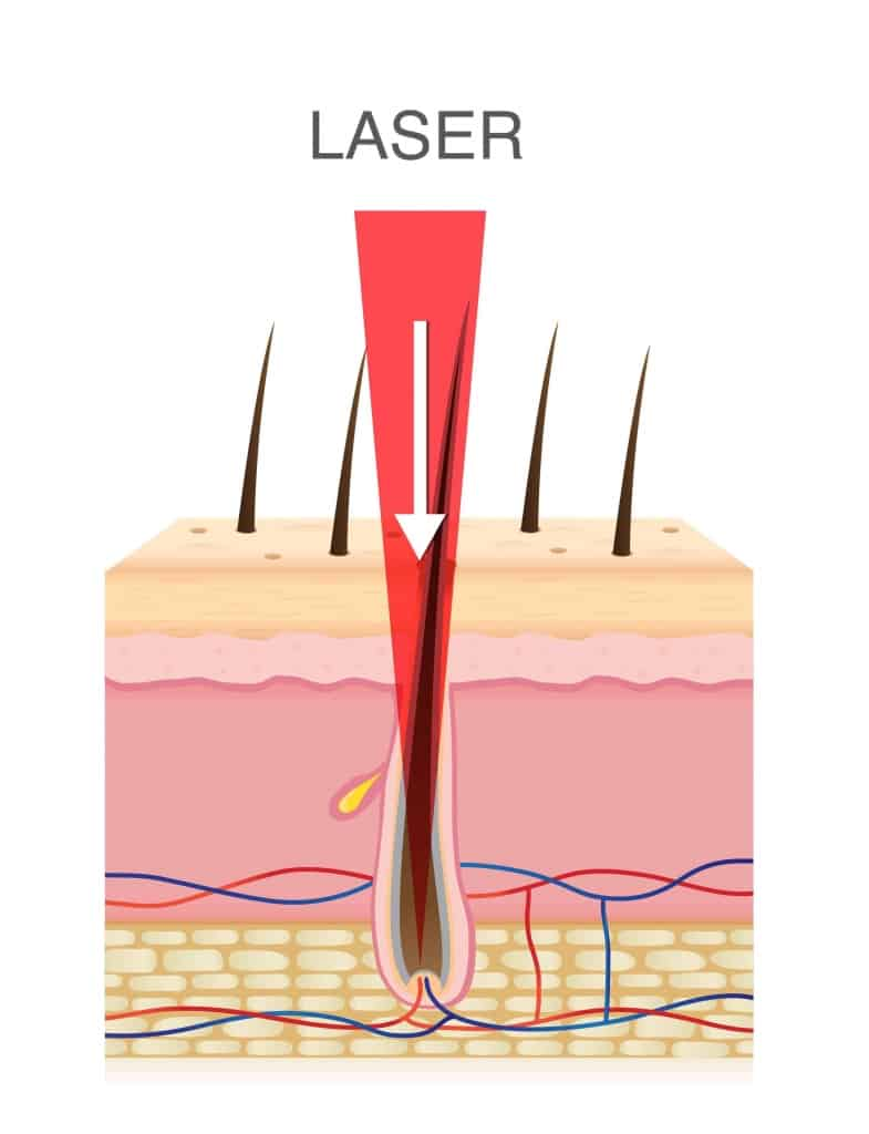 An illustration of a cross section of human skin with a red laser energy beam focused on a dark hair follicle for laser hair removal.