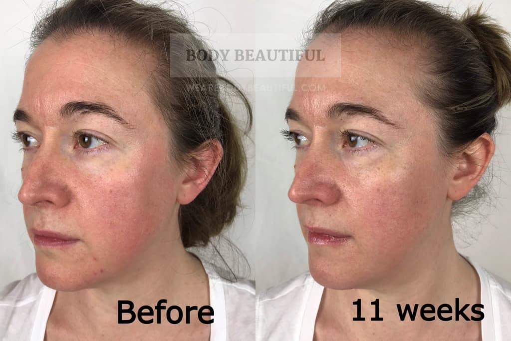 Before vs after 11 weeks from the start of the Tria Age Defying Laser trial.