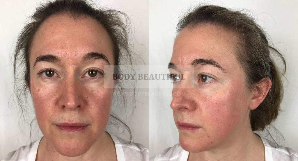 Tria Age Defying Laser Before Vs After Review 3 Month Trial Photos