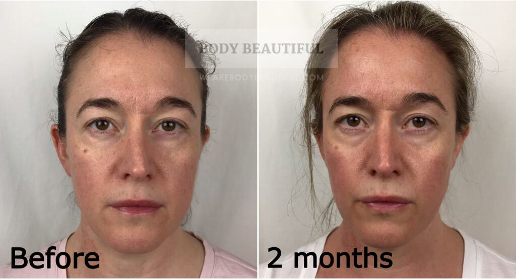 Forward facing before photo next to 2 month photo.