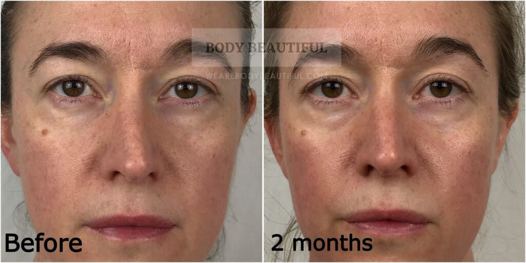 Close-up forward facing before photo next to 2 month photo.