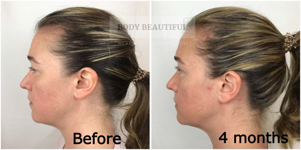 Side profile photo comparison of my face before and 4 month photo