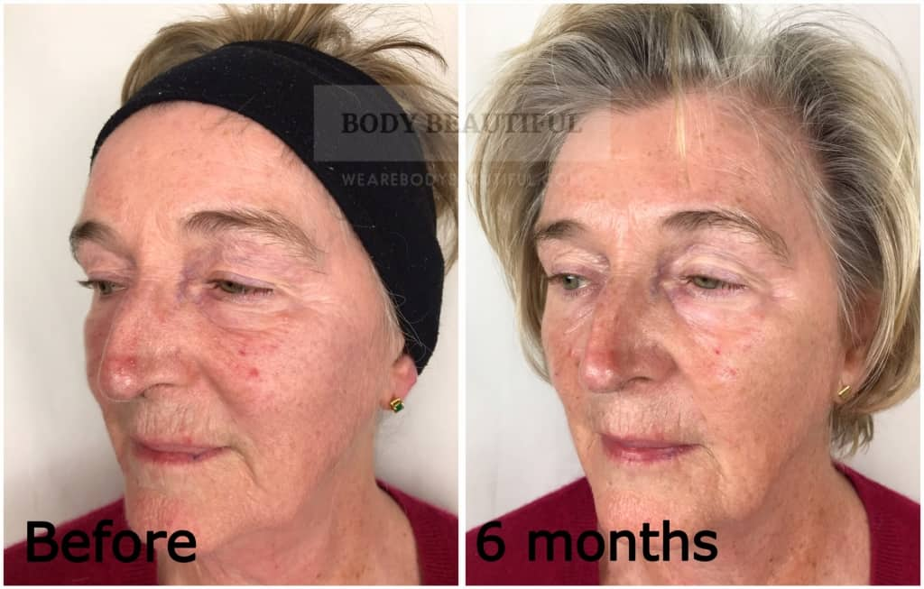 Before and after 6 months photo comparison using the Mira-skin system