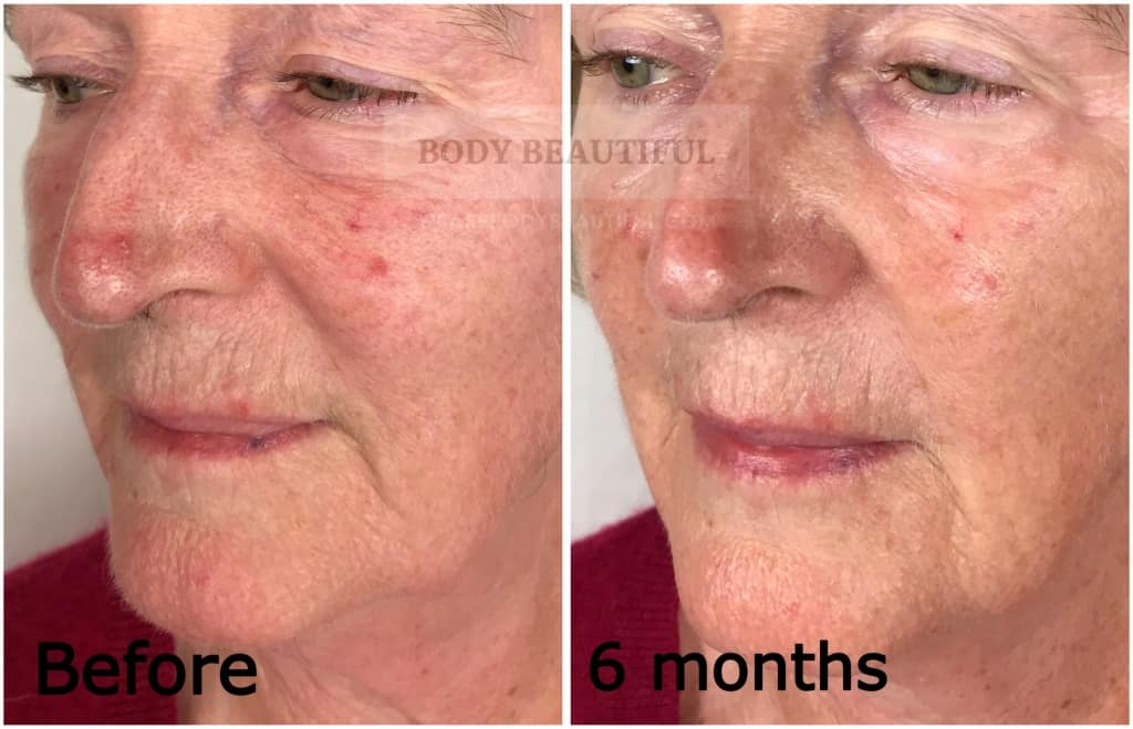 close up of the left cheek and mouth area before and after 6 months using the Mira-skin system