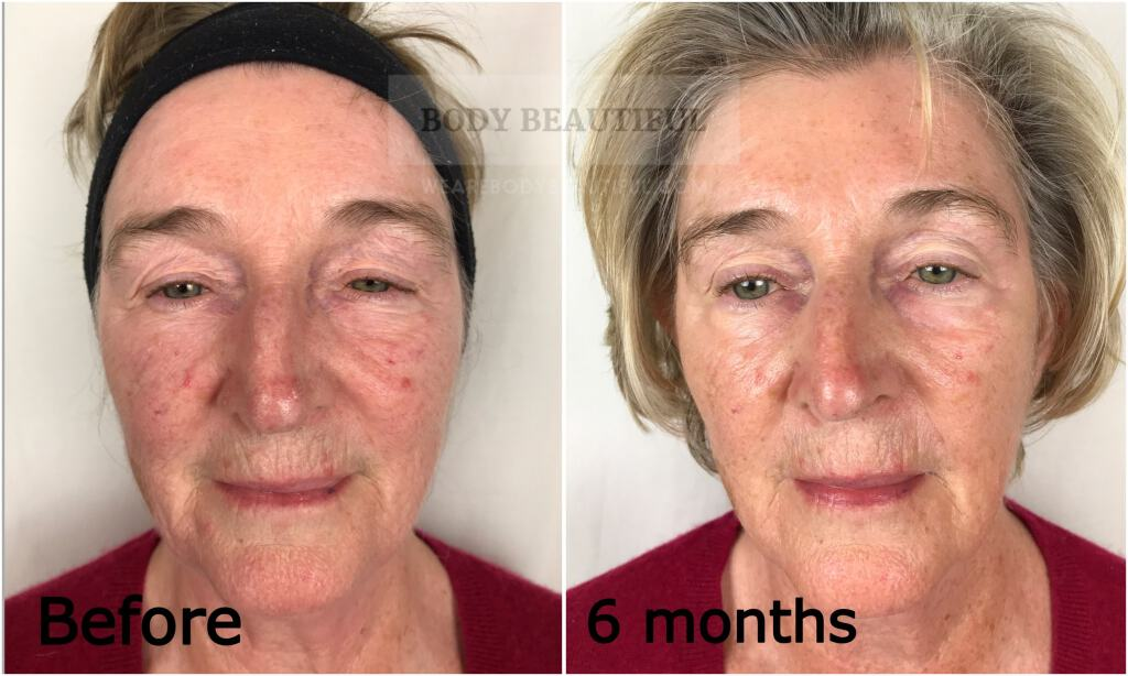 Before and after 6 month photos of using the mira-skin system