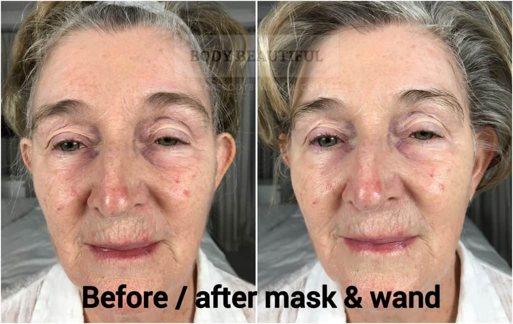 Before and after comparison photos of the Mira-skin hyperhydration mask with ultrasound boost. Results are impressive!