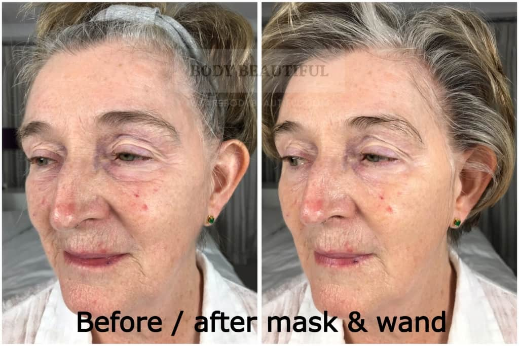 Before and after angled comparison photos of the Mira-skin hyperhydration mask with ultrasound boost. Results are impressive!