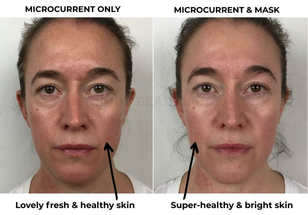 Before & 4-weeks after of using the CurrentBody Skin LED mask along with home microcurrent (Nuface). I went from lovely freshand healthy skin, to super healthy and bright skin. LOVE.