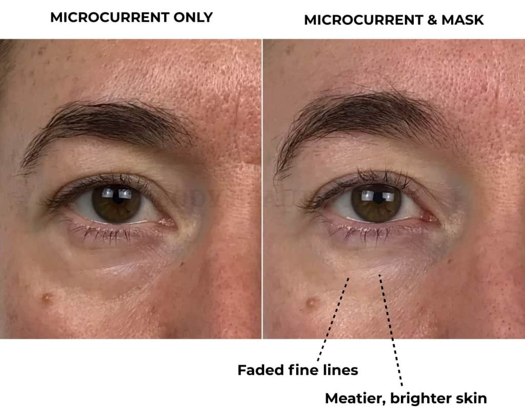 Close up of my smooth and bright under eye area in before & 4-weeks after photos of using the CurrentBody Skin LED mask along with home microcurrent (Nuface).