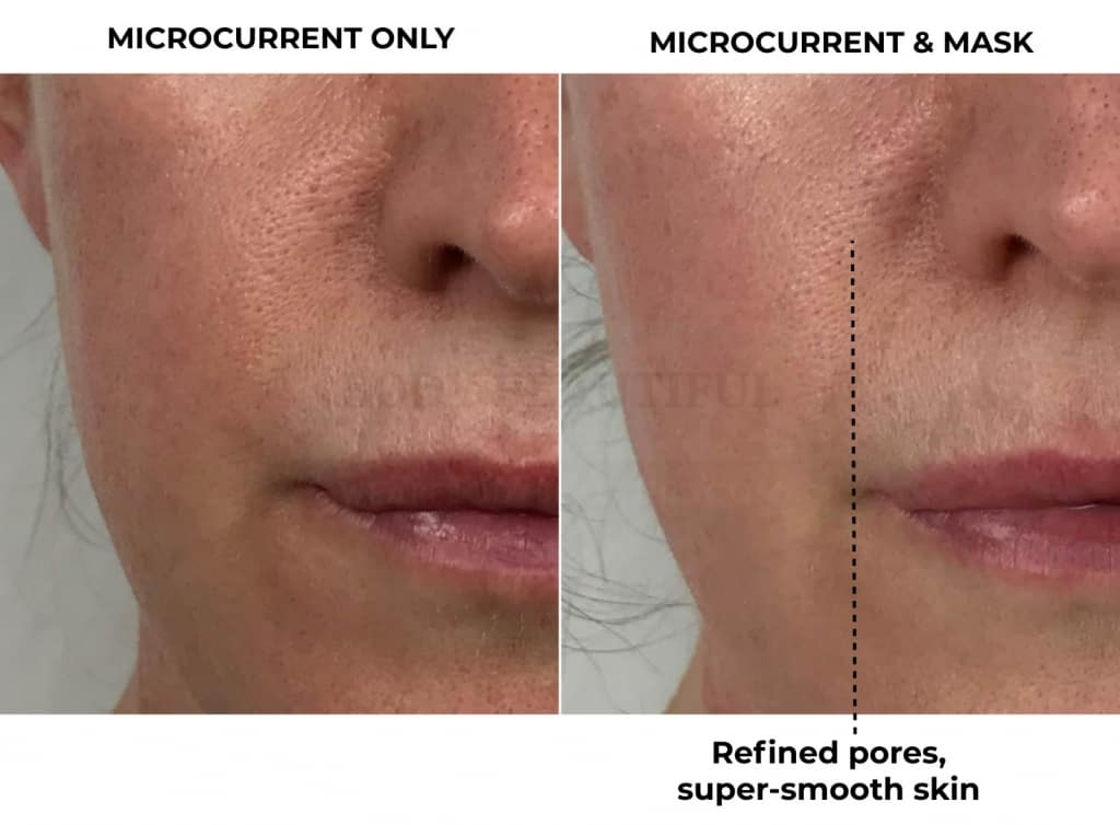 close up of my lovely smooth and refined pores in before & 4-weeks after photos of using the CurrentBody Skin LED mask along with home microcurrent (Nuface).