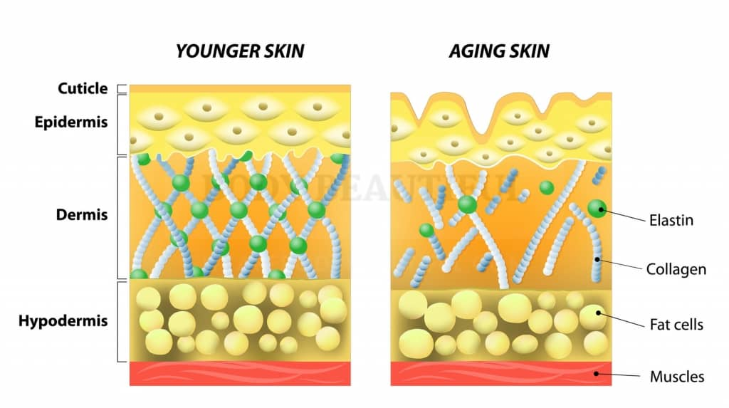 Cross section diagram of young skin with a strong collagen and elastin matrix, next to another of aging skin where the matrix isbroken down and weeker, and surface skin wrinkled.