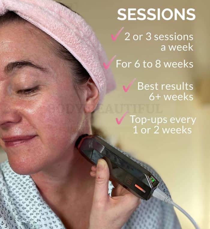 The Tripollar STOP treatment schedule is: 2 or 3 sessions per week, for 6 to 8 weeks. Best results at 6+ weeks. then, top-ups every 1 or 2 weeks to maintain your results.