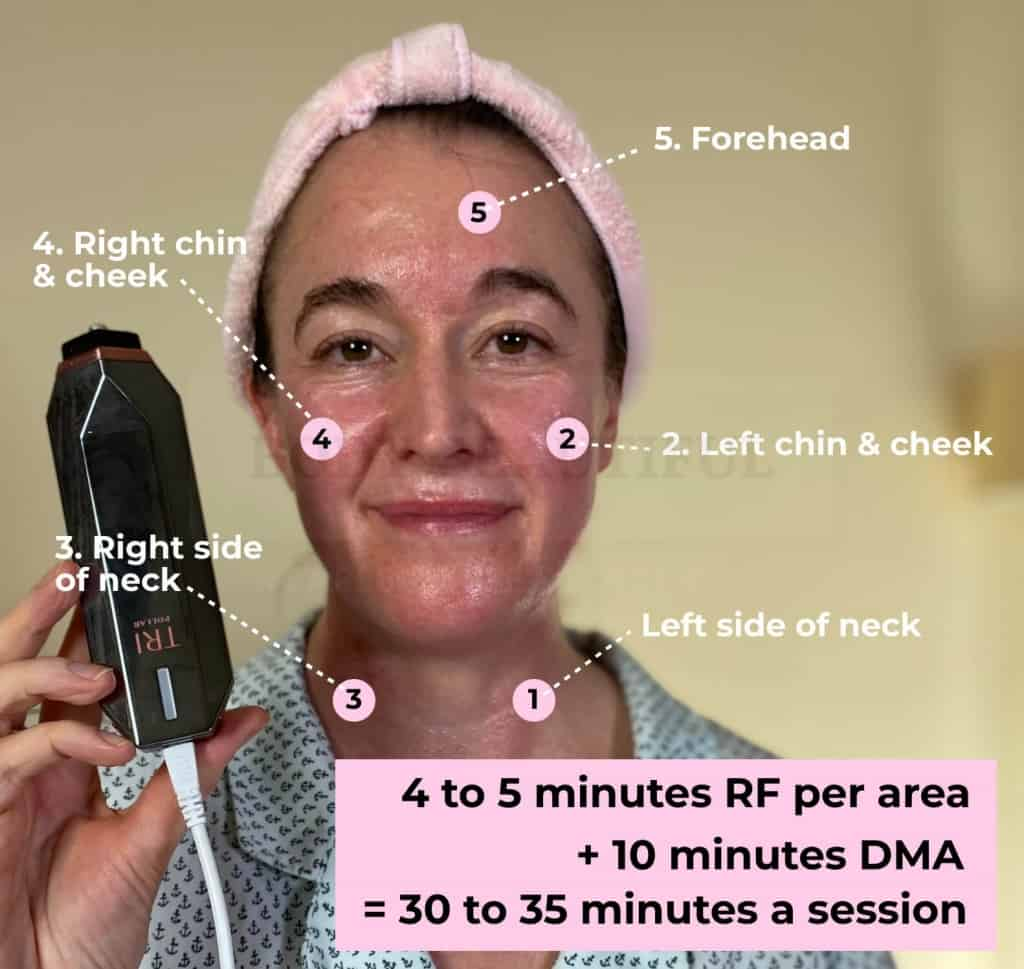 my face with the 5 full face and neck treatment zones labelled, 4 to 5 mins per area, Total 30 to 35 mins