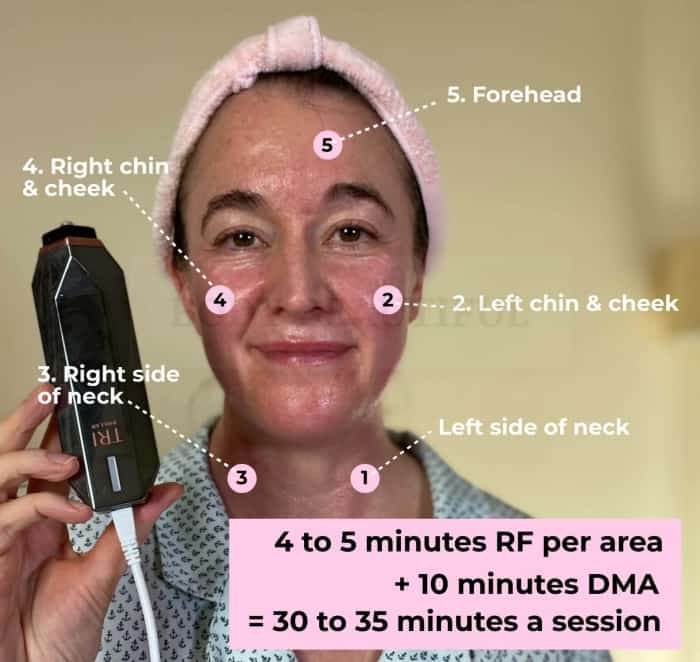 treat each areas for 4 to 5 mins. There are 5 areas labeled on my face & neck: Left side of neck Left chin and cheek Right side of neck Right chin and cheek Forehead