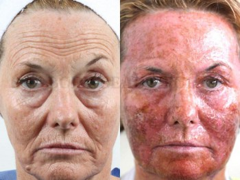 Side by side patient comparison showing red raw skin that's healing after a CO2 ablative laser treatment