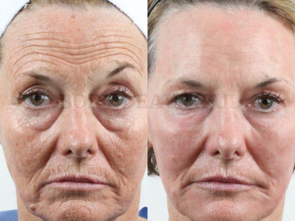 "Side by side comparison of the before and after healing photos for a CO"" ablative laser patient"