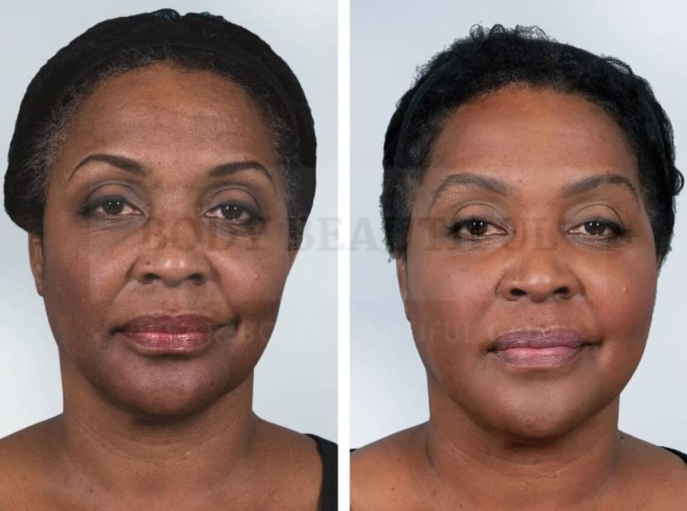 Side by comparison of before and after photos for dark skinned non-ablative laser resurfacing female patient