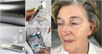 Real-life Mira-skin sultrasound & Hyaluronic Acid phonophoresis user diary with before and after photos