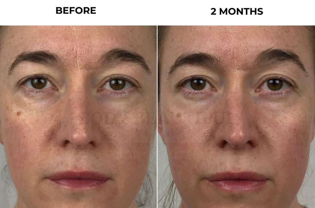 Extreme close-up of my before &  2-month update photos to show how my skin texture & hydration has improved after using the Nuface Trinity for 2 months.