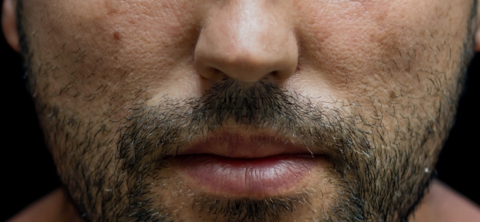 Close up of a man's dark stubble which could be removed or groomed by professional laser hair removal