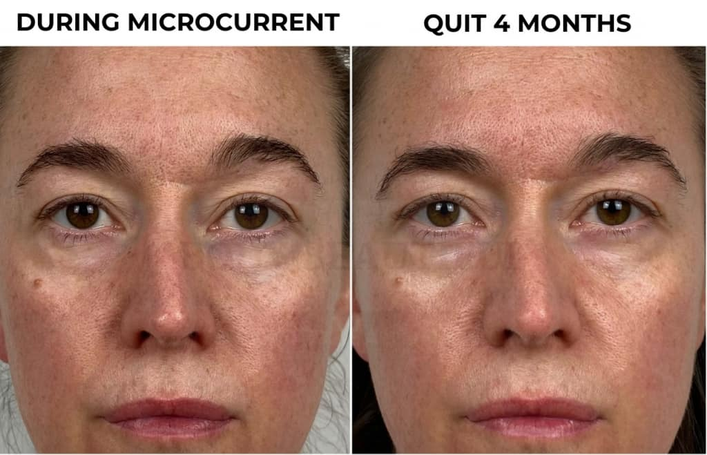 Close up of my skin: My comparison photos of my face during microcurrent & red light, and 4 months after quitting microcurrent