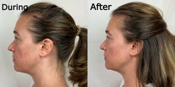 Side profile comparison photos of during microcurrent and 4 months after quitting