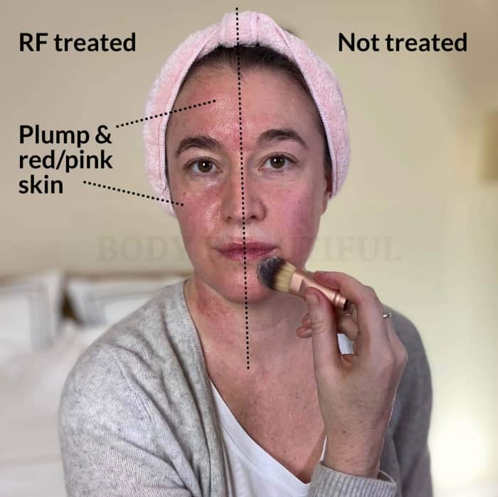 A half & half comparison of my face after I used the Tipollar. On the left pink & plumped skin!
