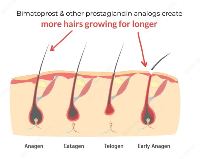 Diagram showing the hair growth cycle with a large hair follicles in Anagen growth, a grown catagen hair detaching from the bulb, a telegon hair no longer growing and retracting out the follicle, and an early anagen hair growing in the hair follicle bulb area again.