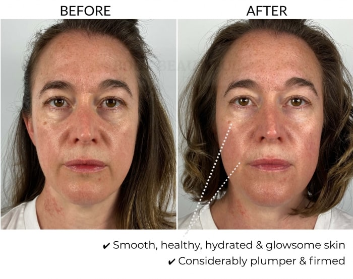 Before and after 5 weeks comparison using the Dermalux Flex MD light therapy kit: My skin is smooth, healthy, hydrated & glowsome! It is considerably plumper & firmed.