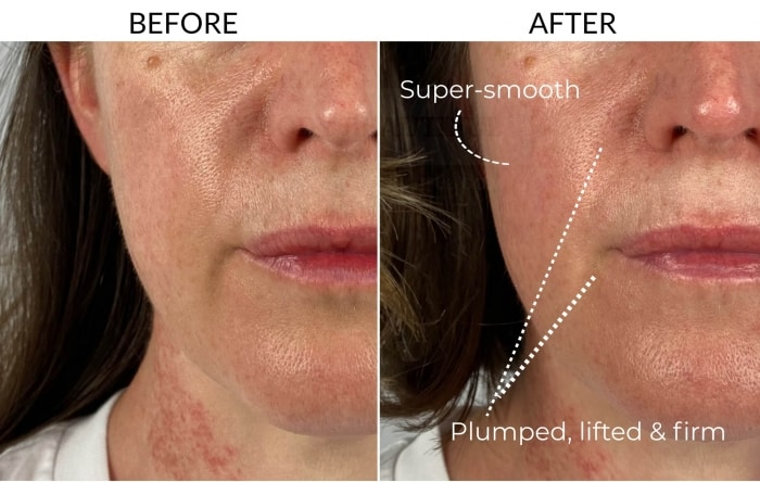 Before and after 5 weeks comparison using the Dermalux Flex MD light therapy kit: this close-up of my mouth and cheek shows a marked change in how plump, lifted and firm my mouth area is.