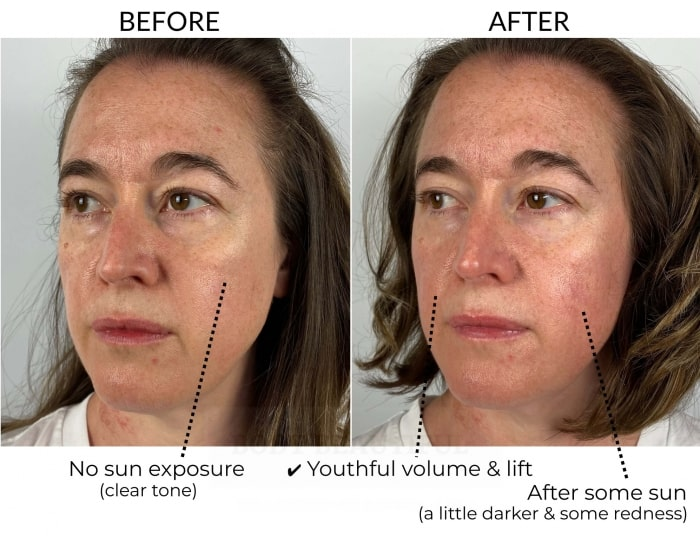 Before and after 5 weeks comparison using the Dermalux Flex MD light therapy kit: this side view comparison shows more clearly the youthful volume in my cheeks and around my mouth.