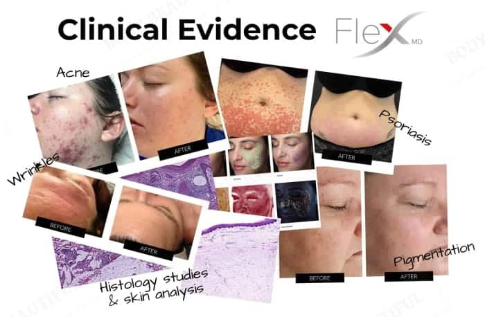 The Flex MD has detailed and braod evidence showing it works including photos, histology studies and skin analysis
